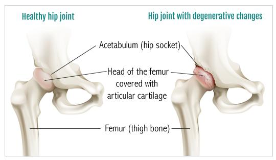 HipDegeneration