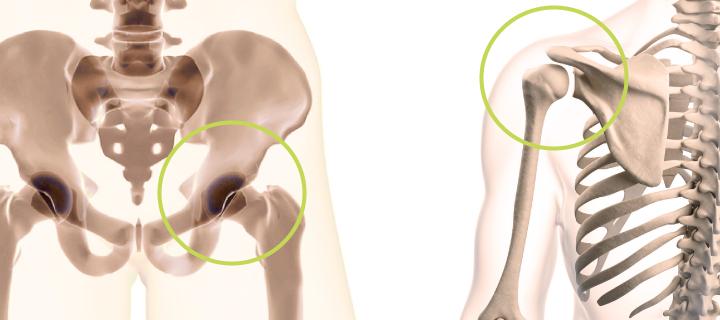 Shoulder pain yoga