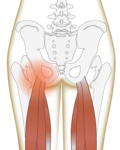 Pain in the butt: hamstring attachement