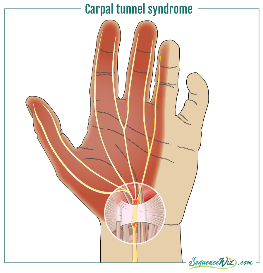 Wrist pain_carpal tunnel syndrome