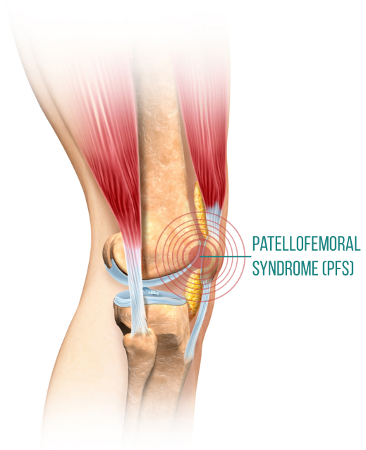 What causes front knee pain and what can we do about it? - Sequence Wiz