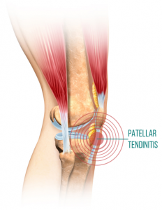 Patellar_Tendinitis_front_knee_pain